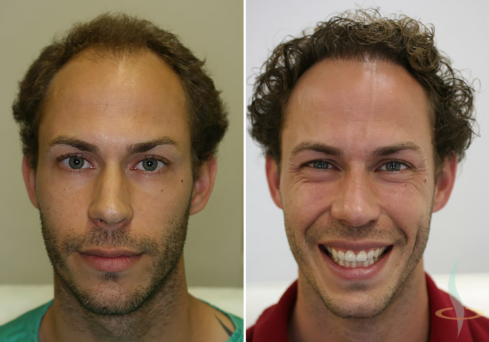 Levo: pre / desno: nakon 2. operacije