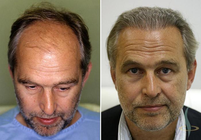 Levo: pre / desno: 8 meseci nakon treće operacije (totalno 2800 graftova)