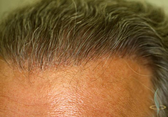 Početak kose