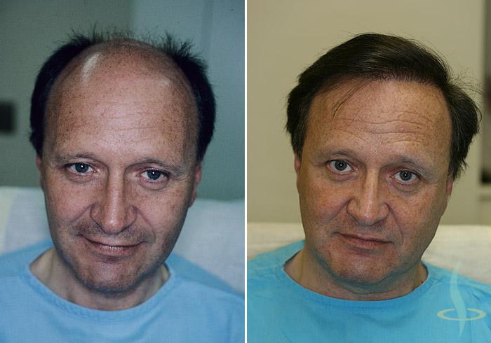 Levo: pre / desno: nakon treće operacije