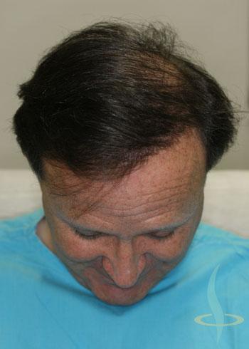 Nakon treće operacije
