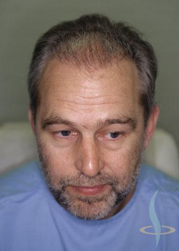 3 meseca nakon prve operacije
