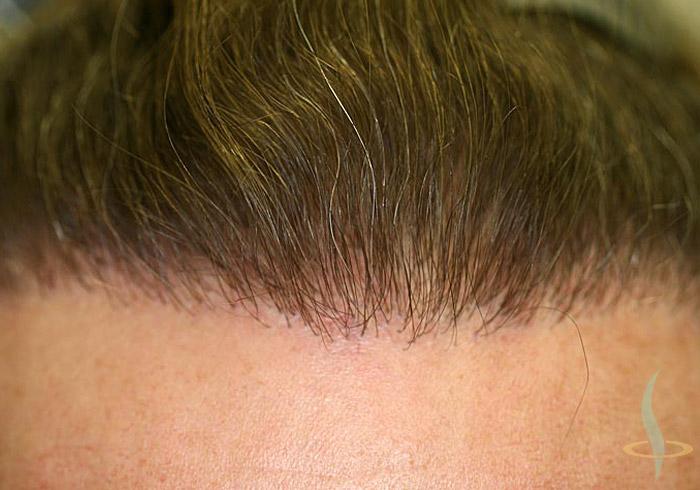 Početak kose nakon druge operacije