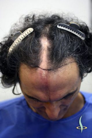 Before the first surgical session with marked hairline